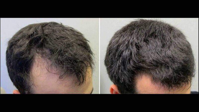 Masturbation May Cause Hair Loss